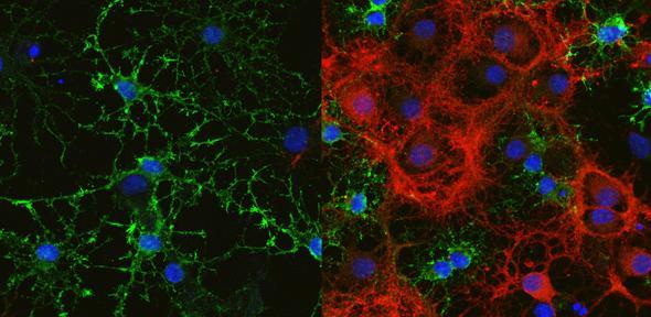 News :: Cambridge Neuroscience
