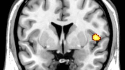 MRI brain scan highlights the insula, one of the areas of the brain that is reduced in volume in subjects with Conduct Disorder.
