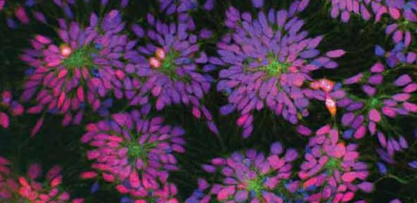 Rosettes of human, patient-specific neural stem cells