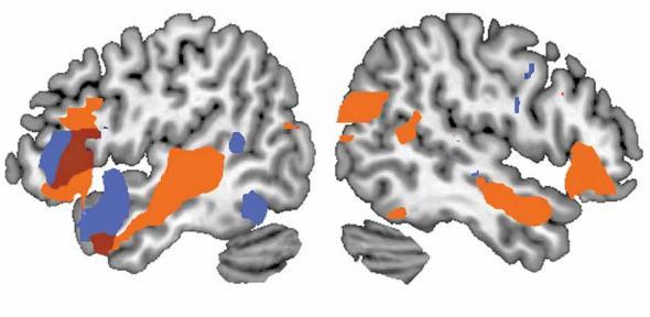 Functional neuroimaging of the human brain