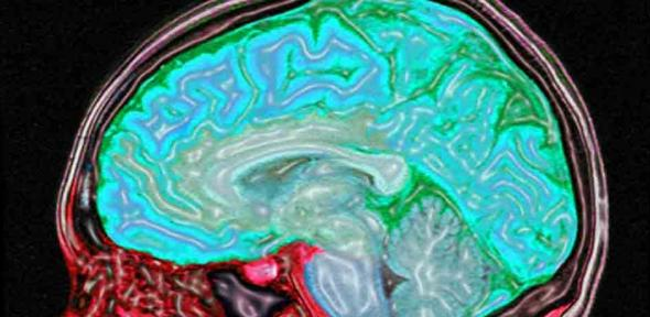 Digitally enhanced MRI of the human head showing the brain and spinal cord in blue/green and the other tissues in red and pink.
