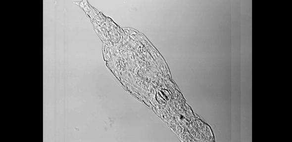 Bdelloid rotifer