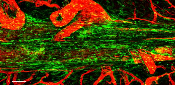 Confocal micrograph showing the superior saggital sinus in the mouse. Immune cells are shown in green lining this tube, and blood vessels in red