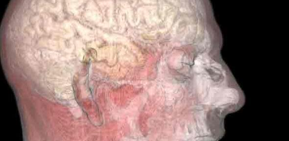 Magnetic resonance image of the mouth, ear and brain