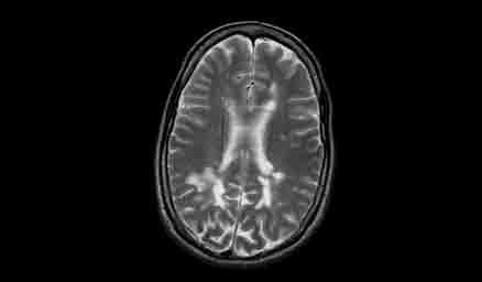 MRI showing lesions on the brain