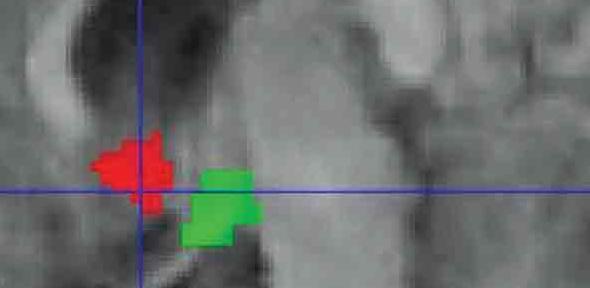 Functional MRI scan