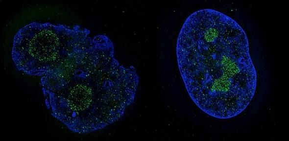 Cell nucleus before and after treatment with Remodelin