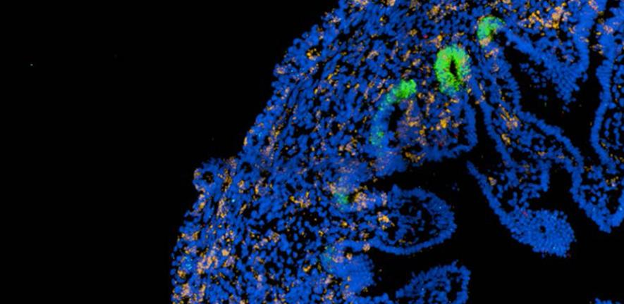 Emerging intestinal villi with stem cells (green) supporting their growth