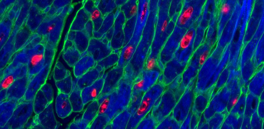 Adult mouse heart muscle cells (blue) after activation of both proteins vital for cell replication. Red shows cells replicating, green marks cell membrane.