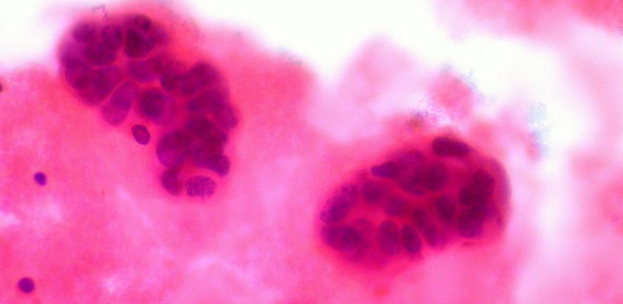 Metastatic Breast Cancer in Pleural Fluid
