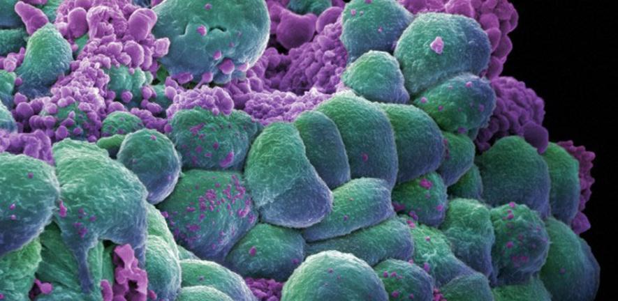 aggressive cancer cells