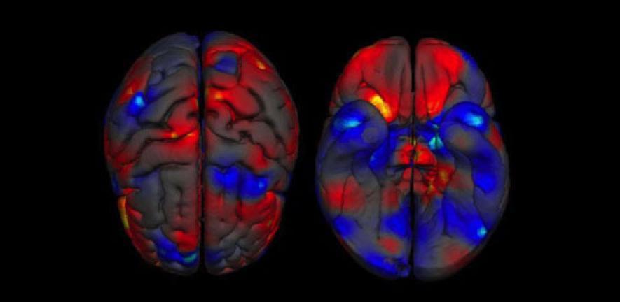 the feminine brain