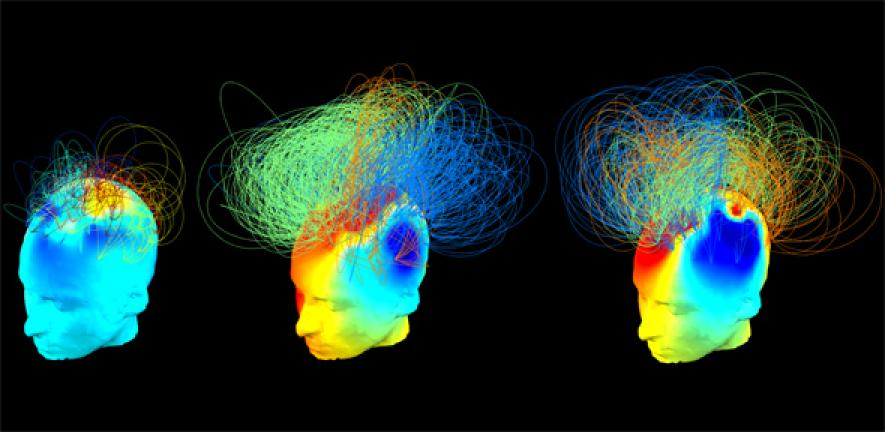 Brain signals from healthy and vegetative state patients
