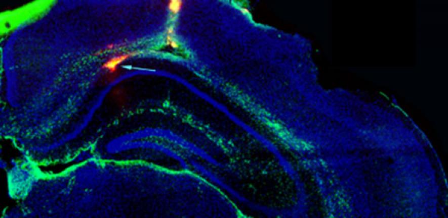 Electronic device implanted in the brain could stop seizures