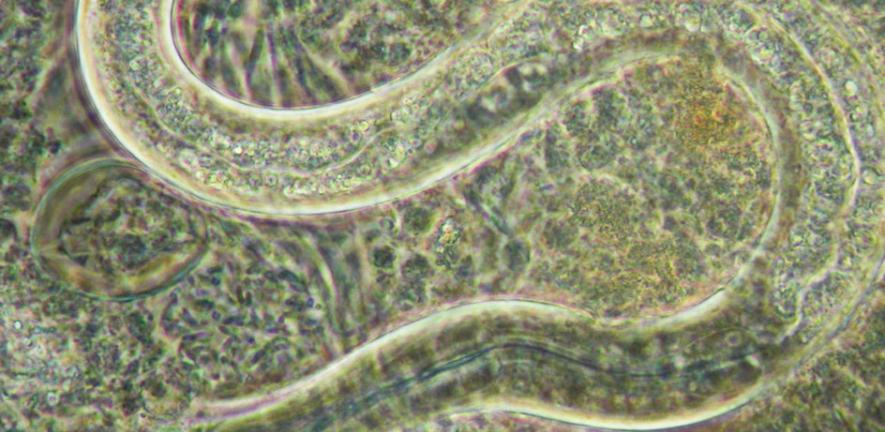 Striking similarities between chips, worms and brains | University