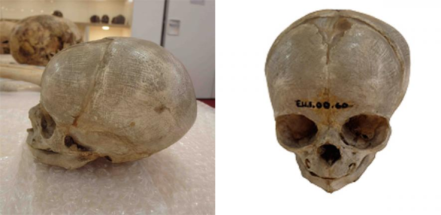 Infant Bodies Were Prized By 19th Century Anatomists