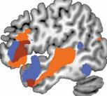 Functional neuroimaging of the human brain