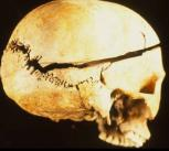 Craniotomy of the skull.