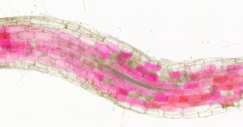 Cells of roots colonised by fungi turn red