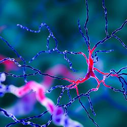 Computer generated image of brain cell degeneration