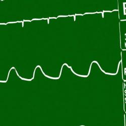 Lubbock Heart Hospital, Dec 16-17, 2005