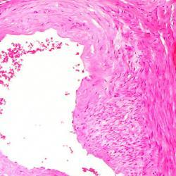 Temporal Artery Aneurysm